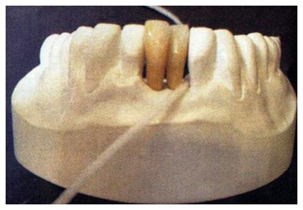 Fio Dental.
