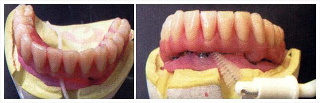 Limpe os espaços entre a prótese e a gengiva com escovas interdentais e o fio dental diariamente.