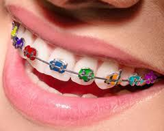 Imagem 15 Aparelho ortodontico fixo
