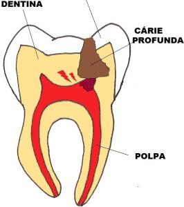 Imagem 4 Carie que atingiu a polpa em um dente posterior